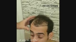 کاشت مو طبیعی
