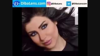 لنزهای رنگی کویین|DibaLens.COM-Queen2