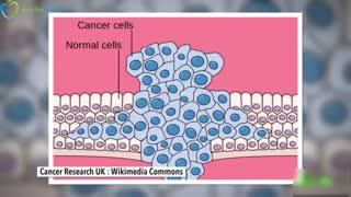 سرطان چیست و چرا هنوز درمان ندارد - فارسی در سیب اول
