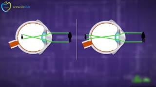 آیا عینک زدن باعث ضعیف شدن چشم ها می شود؟ (به زبان فارسی در سیب تل)