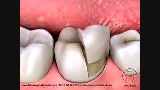 اینله و آنله دندان