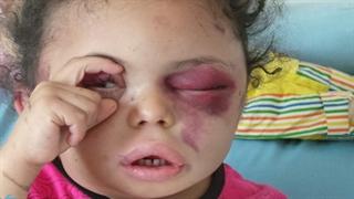 """وضعیت نامناسب """"بثینه"""" کودک یمنی"""