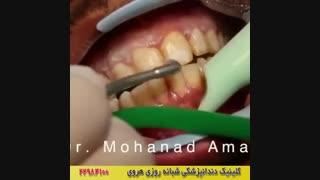 لکه های قهوه ای روی دندان را چگونه سفید می کنند؟